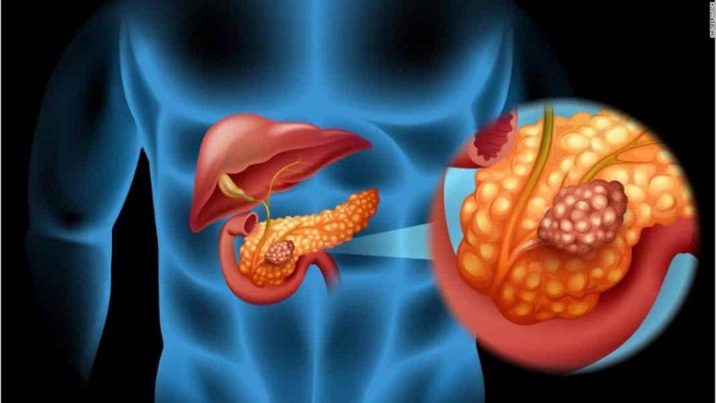 cancer image formation