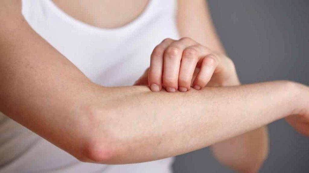 Hautkrankheiten
