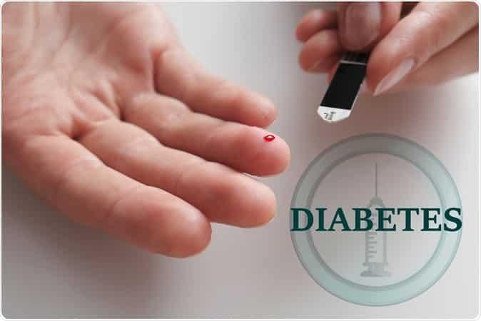 dijabetes melitus slika