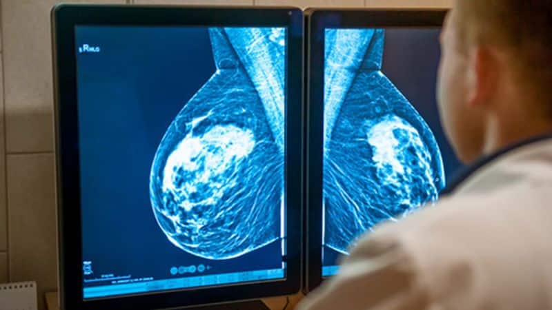 kancer dojke terapija slika