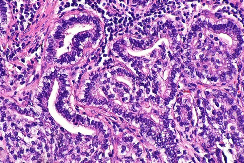 Adenokarzinom Dickdarmkrebs Metastasierung