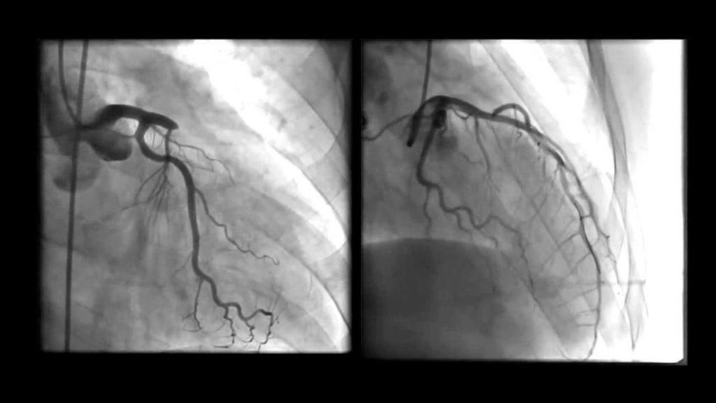 Koronarna angiografija