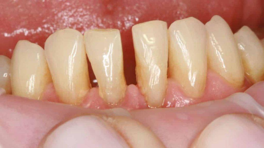 Simptomi parodontitisa